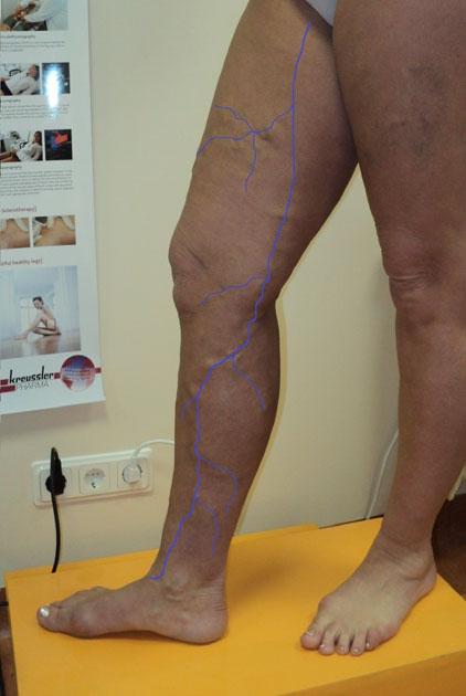 Vēnu operāciju rezultāti. pacientei lielās zemādas vēnas varikoze visā kājas garumā. Izteikta zaru varikoze.