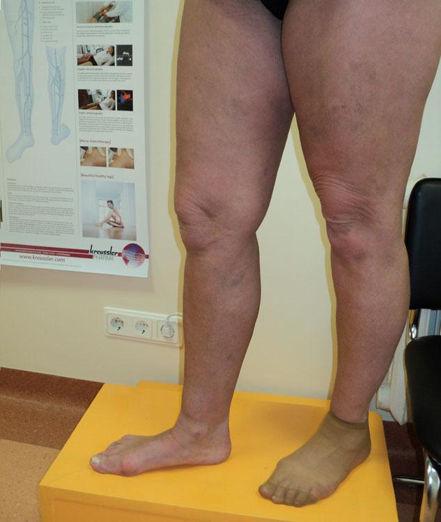 Vēnu operāciju rezultāti. Veikts lielās zemādas vēnas stripings visā garumā un varikozo zaru ekstirpācija pēc VaradY. Foto 2 mēnešus pēc operācijas.