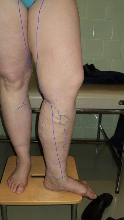 Vēnu operāciju rezultāti.Pacientei lielās zemādas vēnas stumbra varikoze visā garumā, zaru varikoze kreisajai kājai.
