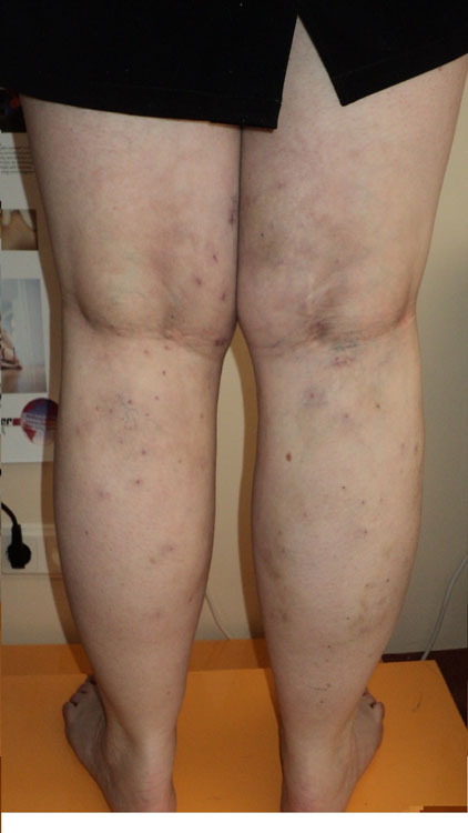 Vēnu operāciju rezultāti. Abu kāju lielās zemādas vēnas stripings, zaru ekstirpācija pēc varadY.