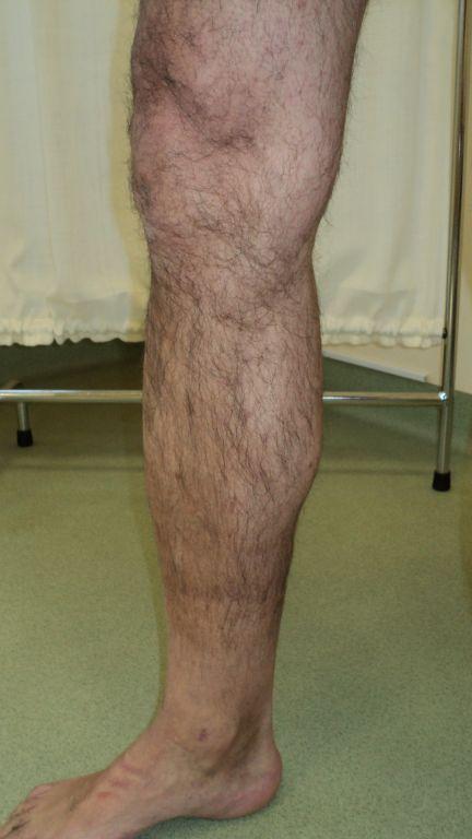 1 mēnesi pēc operācijas